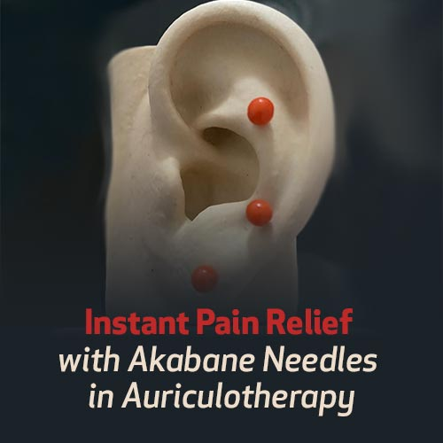Instant Pain Relief with Akabane Needles in Auriculotherapy